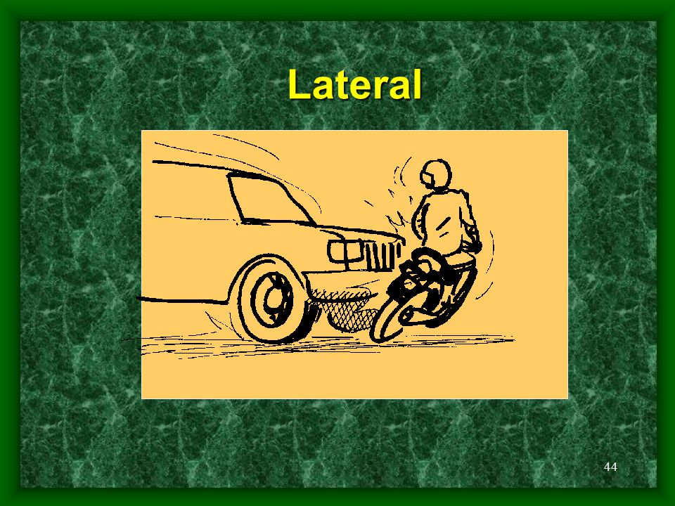 44 Lateral