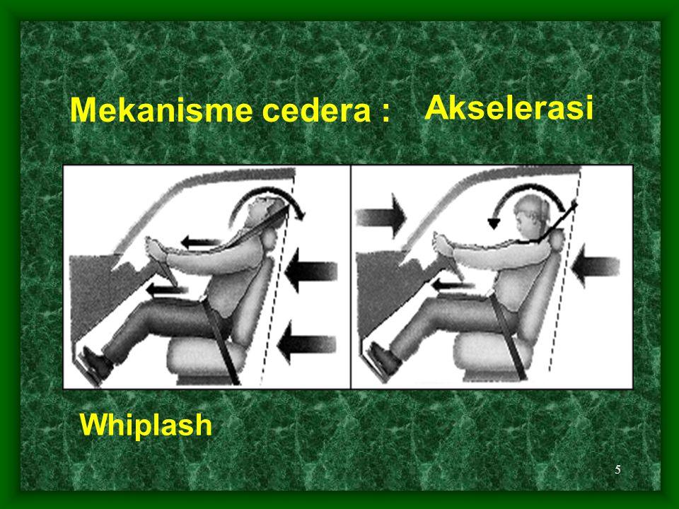 5 Whiplash Mekanisme cedera : Akselerasi