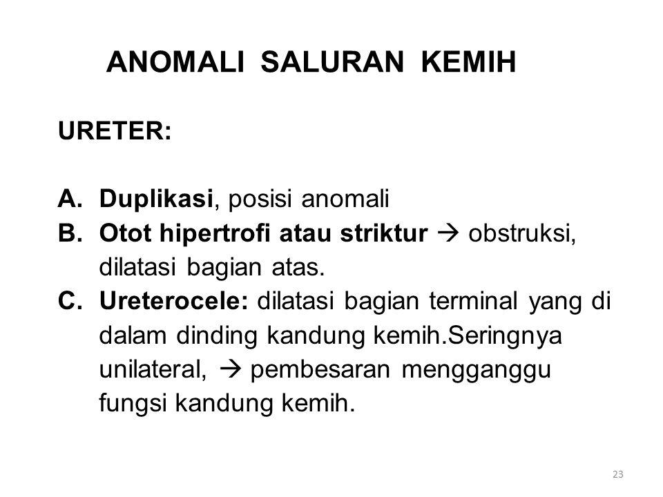 ANOMALI SALURAN KEMIH URETER: A.Duplikasi, posisi anomali B.Otot hipertrofi atau striktur  obstruksi, dilatasi bagian atas. C.Ureterocele: dilatasi b