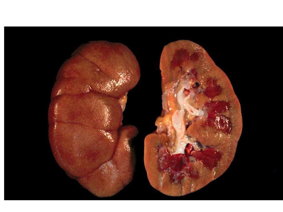 Turbiditas: transparan (urine baru); berkabut (dibiarkan) Bau: aromatik ringan (baru)  amonia (dibiarkan); metilmerkaptan (pada orang tertentu yang makan asparagus ); bau buah (badan keton pada diabetes mellitus)