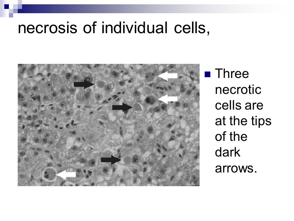 necrosis of individual cells, Three necrotic cells are at the tips of the dark arrows.