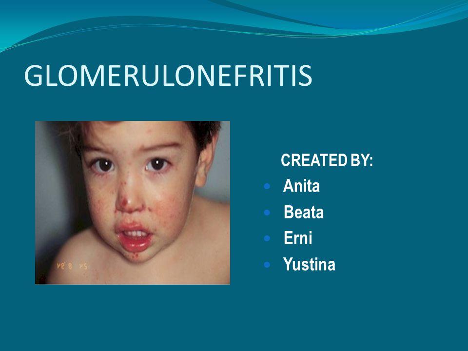 GLOMERULONEFRITIS CREATED BY: Anita Beata Erni Yustina