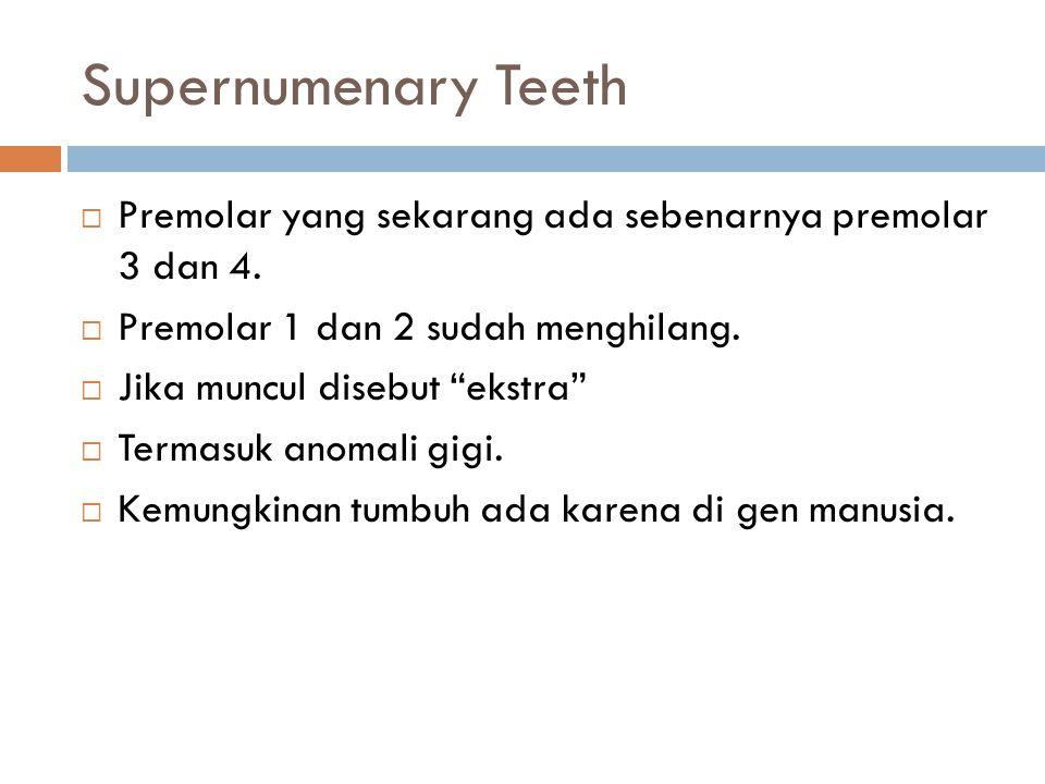 """Supernumenary Teeth  Premolar yang sekarang ada sebenarnya premolar 3 dan 4.  Premolar 1 dan 2 sudah menghilang.  Jika muncul disebut """"ekstra""""  Te"""