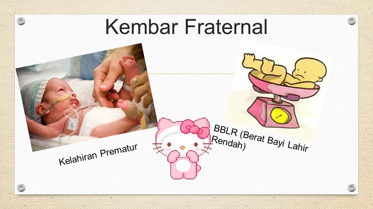 Kembar Fraternal Kelahiran Prematur BBLR (Berat Bayi Lahir Rendah)