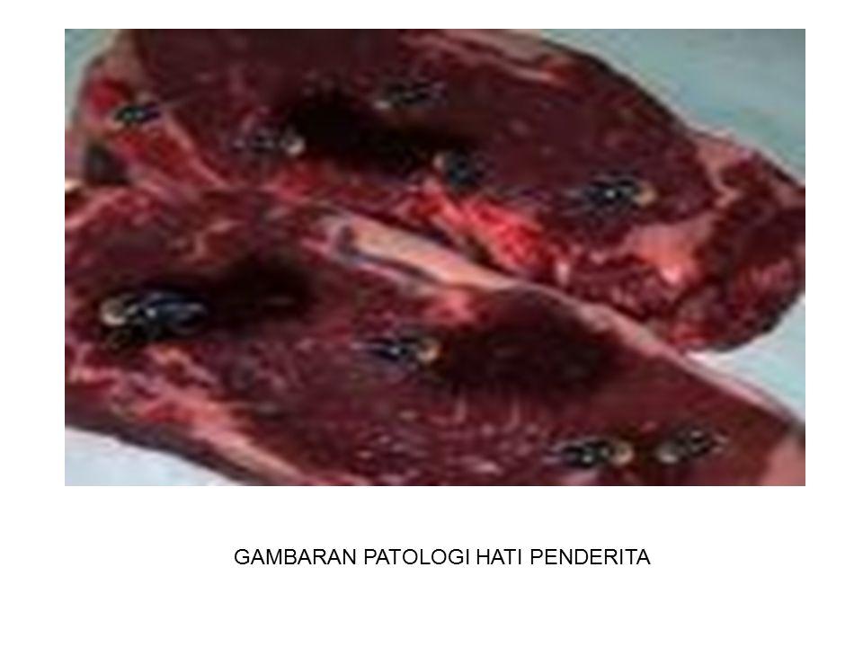 Redia Daur Hidup Cacing dewasa dalam tubuh sapi Telur Mirasidium Siput Sporosis Serkaria Metaserkaria