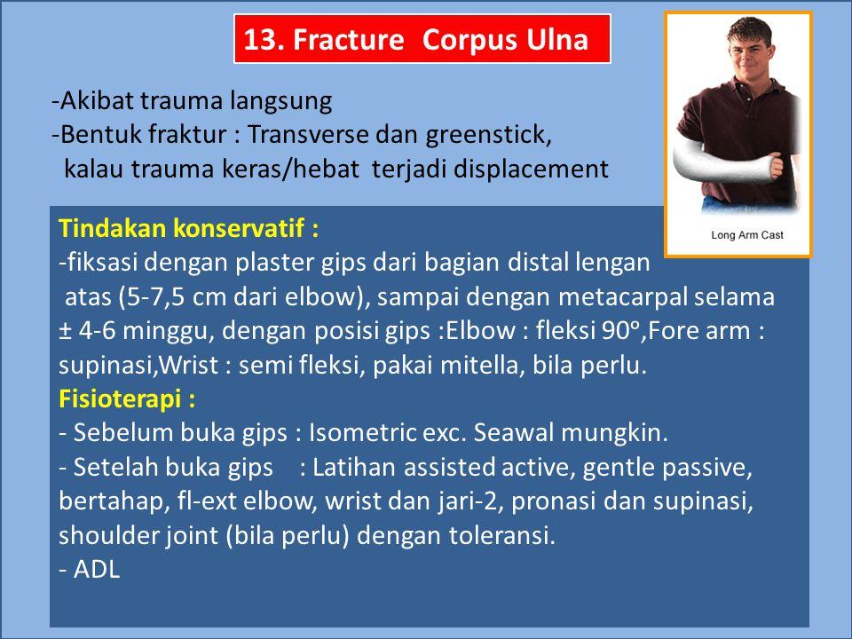 13. Fracture Corpus Ulna -Akibat trauma langsung -Bentuk fraktur : Transverse dan greenstick, kalau trauma keras/hebat terjadi displacement Tindakan k