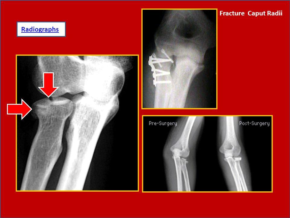 10.Fracture Caput Radii -Trauma langsung, caput radii terdorong dan terjadi fracture caput radii.