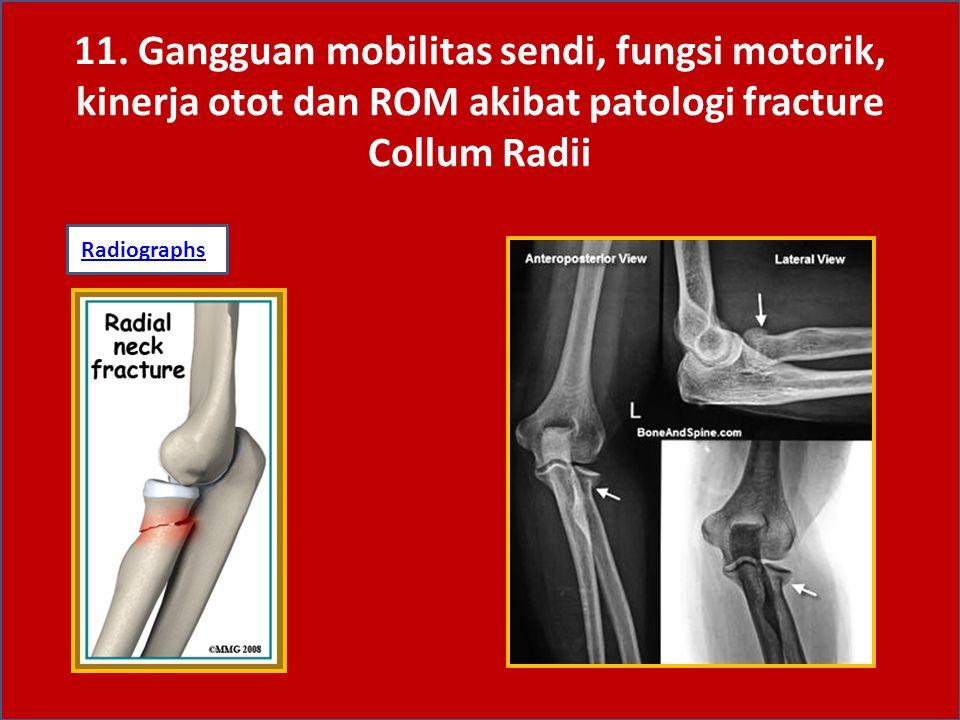 Fracture Collum Radii -Sering terjadi pada anak-2, biasanya fracture bersifat greenstick.