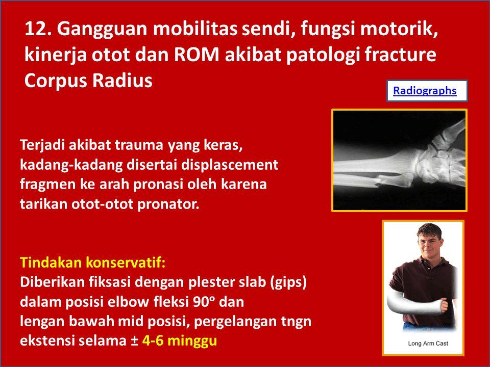 Tindakan operatif: Diberikan internal fiksasi dengan pin atau plate ditambah eksternal fiksasi dengan elastis bandage selama 2-3 minggu Fisioterapi Sama dengan tindakan yang diberikan pada fraktur corpus ulna #U&R/OR 12.
