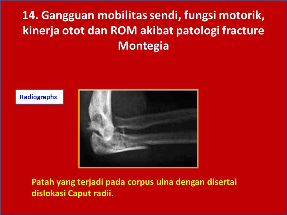 14. Gangguan mobilitas sendi, fungsi motorik, kinerja otot dan ROM akibat patologi fracture Montegia RadiographsRadiographs: Patah yang terjadi pada c