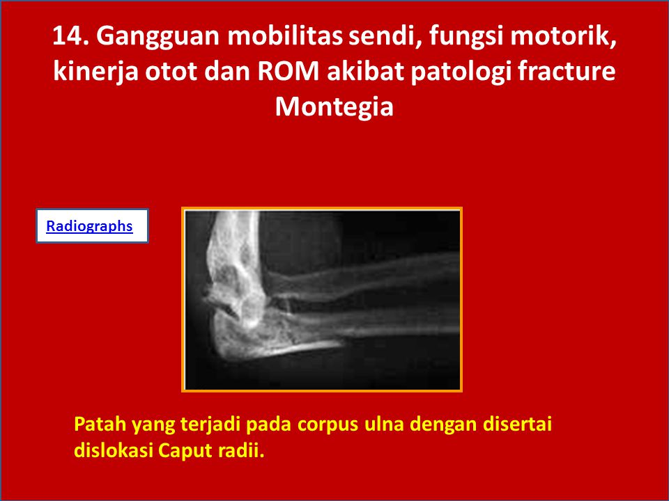 Cedera Monteggia melibatkan fraktur sepertiga proksimal ulna dan dislokasi anterior dari head of radius.