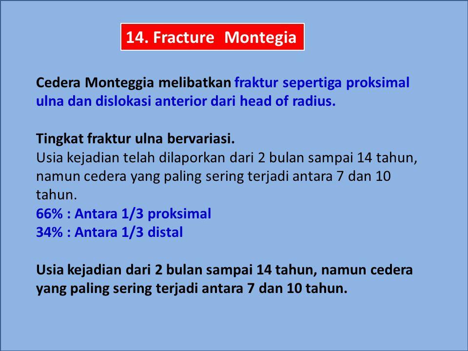 Cedera Monteggia melibatkan fraktur sepertiga proksimal ulna dan dislokasi anterior dari head of radius. Tingkat fraktur ulna bervariasi. Usia kejadia