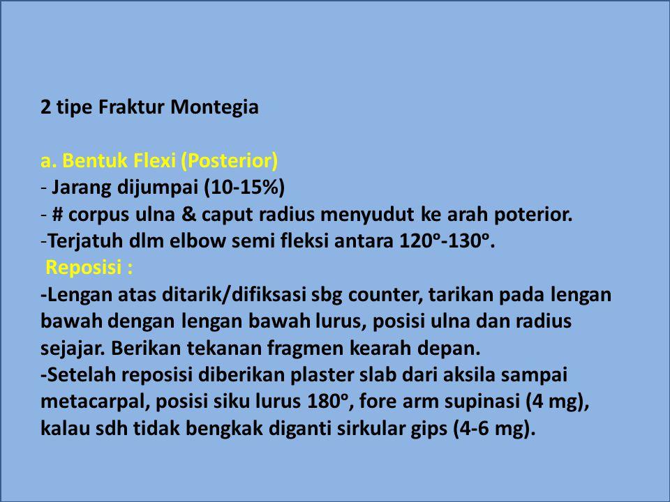2 tipe Fraktur Montegia a. Bentuk Flexi (Posterior) - Jarang dijumpai (10-15%) - # corpus ulna & caput radius menyudut ke arah poterior. -Terjatuh dlm