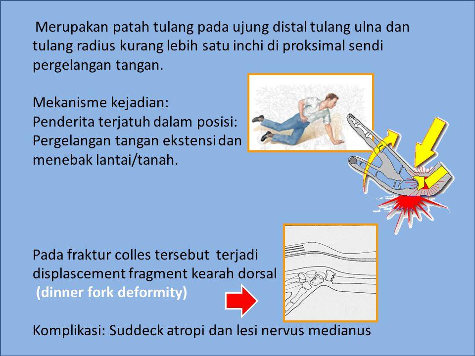 Fracture Colles Reposisi: Dalam posisi bersalaman dengan penderita, berikan tarikan ke arah distal sejajar dengan aksis longitudinal tulang, pada saat yang bersamaan, berikan kounter traksi pada bagian proksimal Selanjutnya setelah direposisi diberikan fiksasi dengan plaster slab/gips dari bawah siku sampai metacarpal kurang lebih 3-6 minggu dalam posisi lengan bawah supinasi