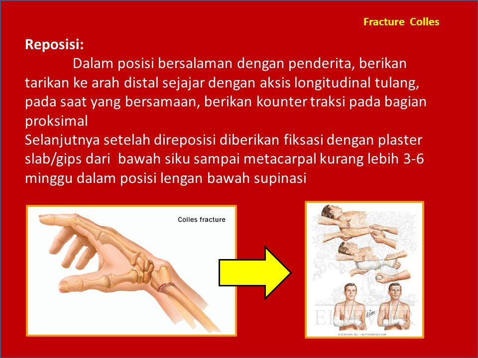 Fracture Colles Reposisi: Dalam posisi bersalaman dengan penderita, berikan tarikan ke arah distal sejajar dengan aksis longitudinal tulang, pada saat
