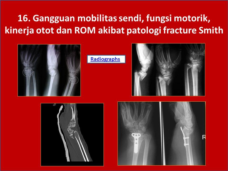 16. Gangguan mobilitas sendi, fungsi motorik, kinerja otot dan ROM akibat patologi fracture Smith RadiographsRadiographs:
