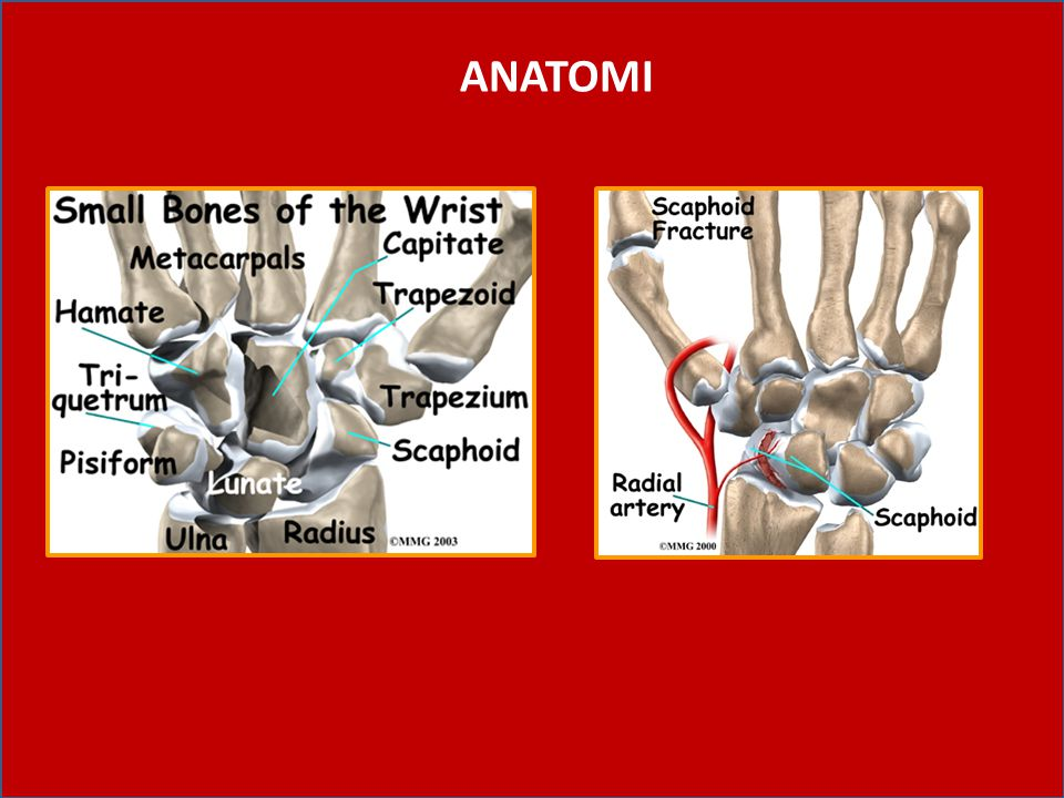 17.Fracture Scapoid The scaphoid is located at the base of the thumb, just above the radius bone.