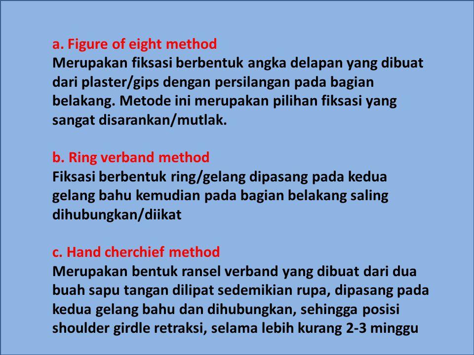 a. Figure of eight method Merupakan fiksasi berbentuk angka delapan yang dibuat dari plaster/gips dengan persilangan pada bagian belakang. Metode ini