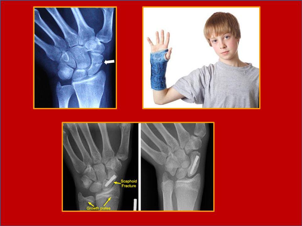 Fisioterapi -Latihan-latihan isometrik pada otot-otot disekitar bagian fraktur diberikan seawal mungkin, -Latihan-latihan aktif diberikan setelah lepas immobilisasi, --Latihan penguatan dan -Stretching /PROM untuk meningkatkan ROM wrist joint.