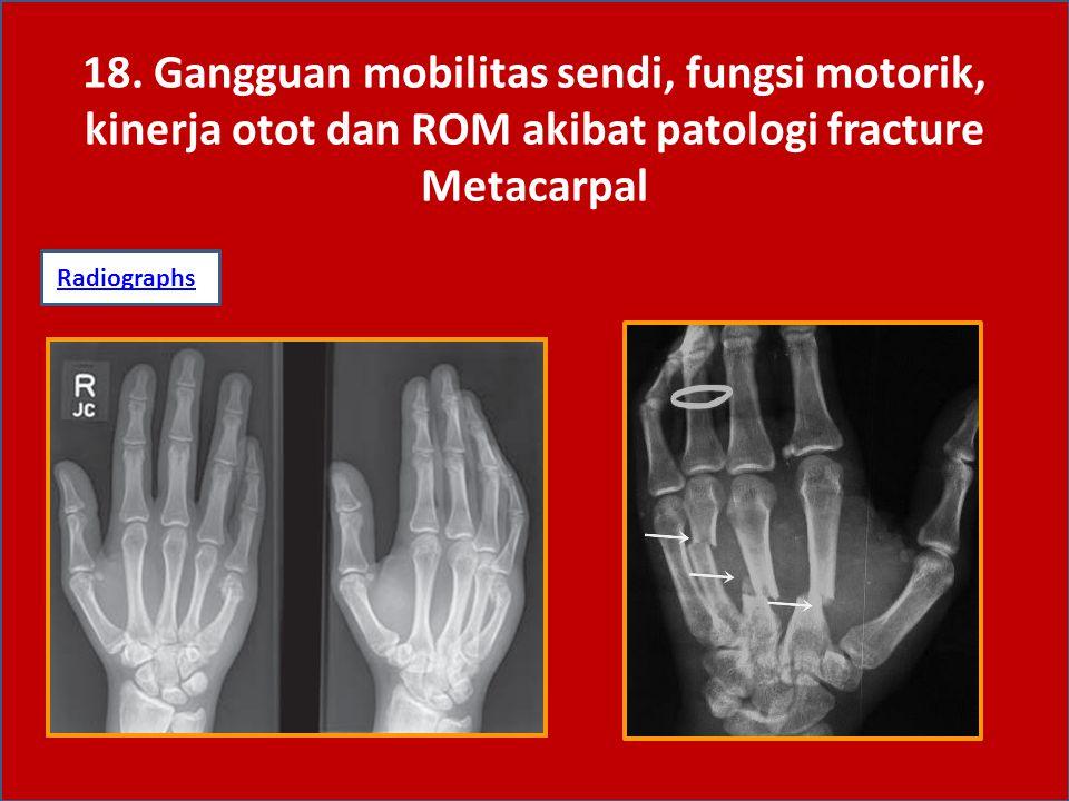 18. Gangguan mobilitas sendi, fungsi motorik, kinerja otot dan ROM akibat patologi fracture Metacarpal RadiographsRadiographs: