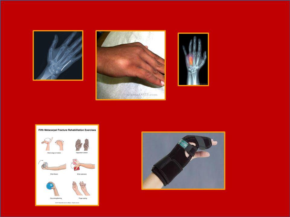 Patah tulang ini pada umumnya disebabkan oleh trauma yang terjadi akibat suatu kecelakaan baik lalu lintas maupun industri/mekanik(mesin).