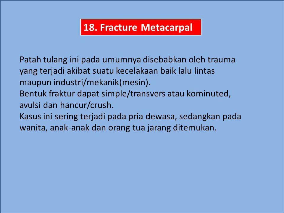 Fraktur metacarpal diklasifikasikan menjadi 4 kelompok: Fraktur caput metacarpal Fraktur collum metacarpal Fraktur corpus metacarpal Fraktur basis metacarpal Komplikasi Perubahan alignment tulang metacarpal/rotasi Fibrosis interosseus, karena adanya kerusakan jaringan lunak.