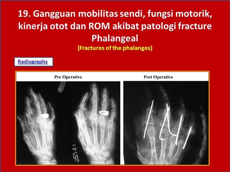 Fraktur phalangeal/jari-jari tangan diklasifikasikan dalam: Fraktur distal phalangeal Fraktur middle Proksimal phalangeal Tipe/pola fraktur: Longitudinal ( Tipe I ) Transverse ( Tipe II ) Kominuted (Tipe III) Displascement (Tipe IV) 19.