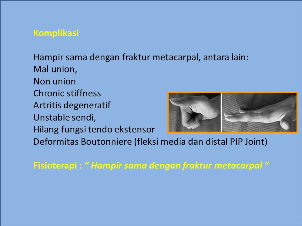 Komplikasi Hampir sama dengan fraktur metacarpal, antara lain: Mal union, Non union Chronic stiffness Artritis degeneratif Unstable sendi, Hilang fung