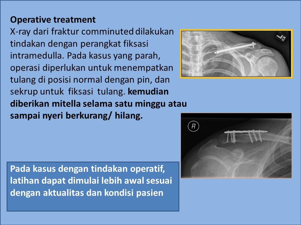 Operative treatment X-ray dari fraktur comminuted dilakukan tindakan dengan perangkat fiksasi intramedulla. Pada kasus yang parah, operasi diperlukan