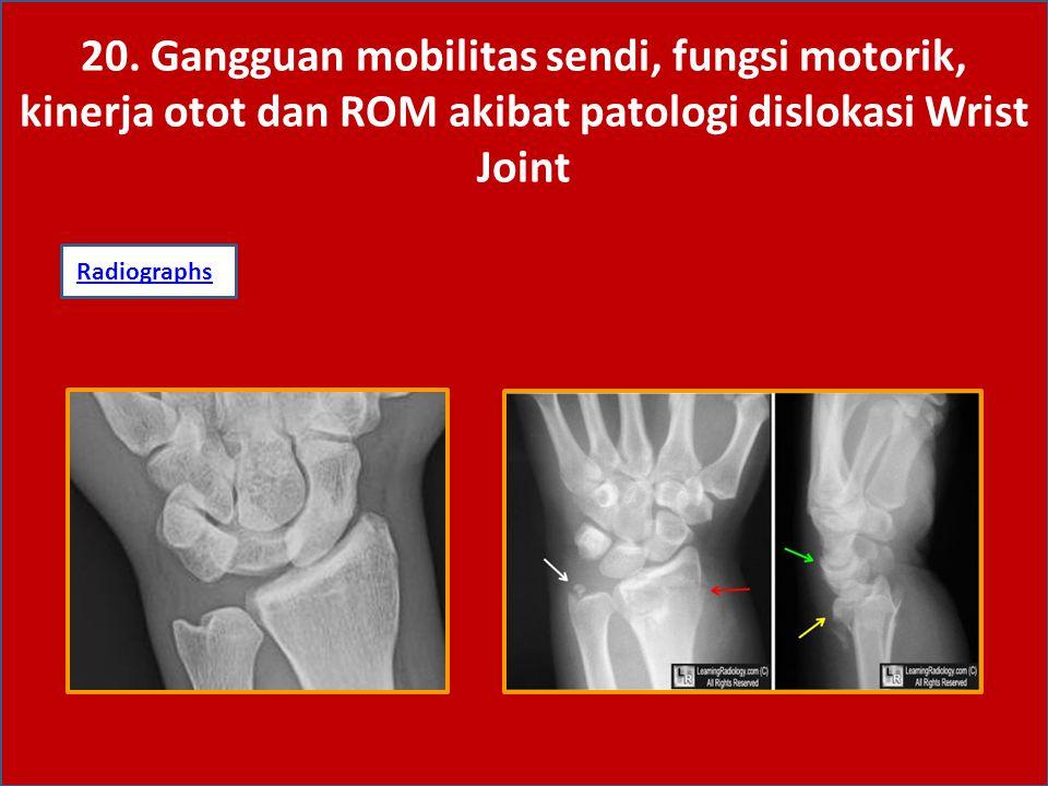 20. Gangguan mobilitas sendi, fungsi motorik, kinerja otot dan ROM akibat patologi dislokasi Wrist Joint RadiographsRadiographs: