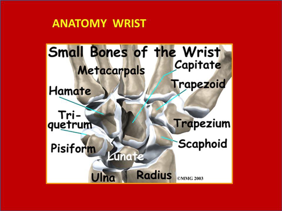 Dislokasi wrist joint (pergelangan tangan) kadang-kadang diikuti dengan fraktur tulang radius dan masuk ke dalam ruangan sendi.