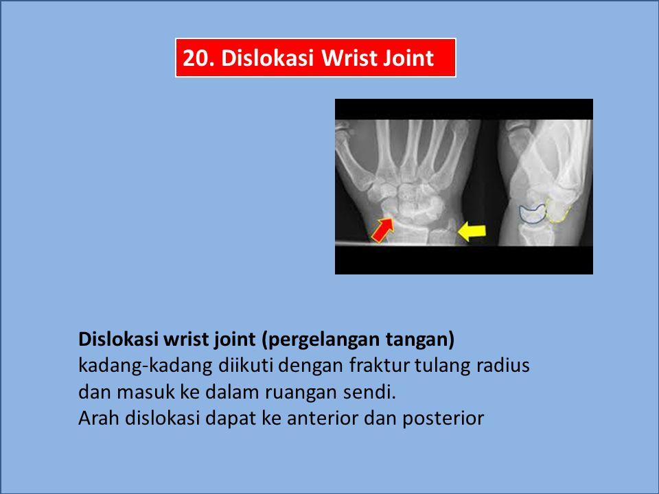 Dislokasi wrist joint (pergelangan tangan) kadang-kadang diikuti dengan fraktur tulang radius dan masuk ke dalam ruangan sendi. Arah dislokasi dapat k