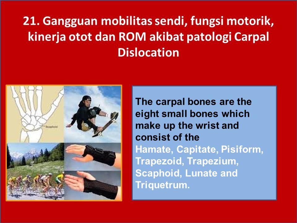 21. Gangguan mobilitas sendi, fungsi motorik, kinerja otot dan ROM akibat patologi Carpal Dislocation The carpal bones are the eight small bones which