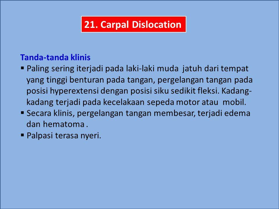 21. Carpal Dislocation Tanda-tanda klinis  Paling sering iterjadi pada laki-laki muda jatuh dari tempat yang tinggi benturan pada tangan, pergelangan