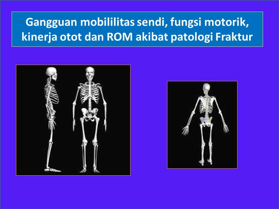 Gangguan mobililitas sendi, fungsi motorik, kinerja otot dan ROM akibat patologi Fraktur