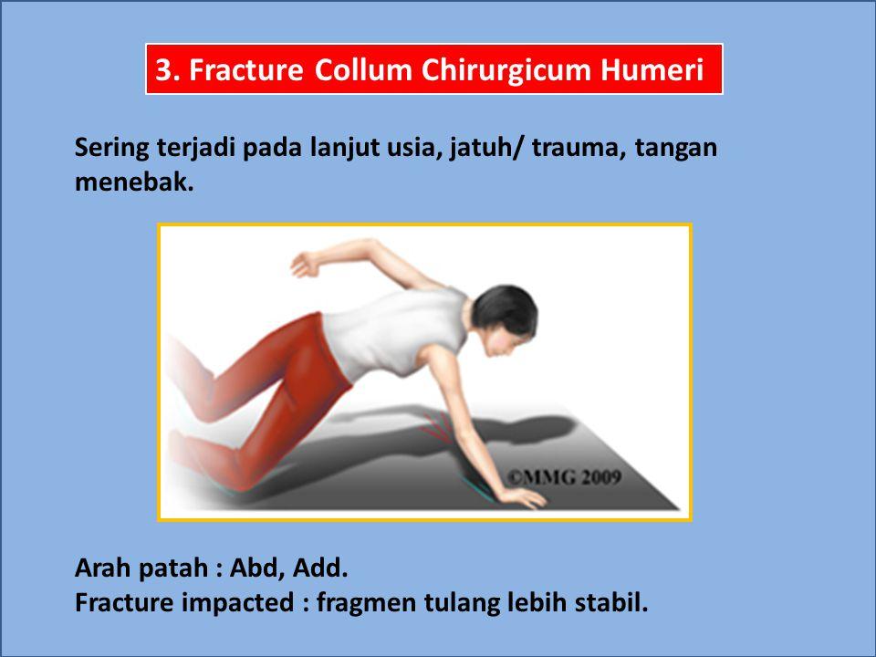 3. Fracture Collum Chirurgicum Humeri Sering terjadi pada lanjut usia, jatuh/ trauma, tangan menebak. Arah patah : Abd, Add. Fracture impacted : fragm