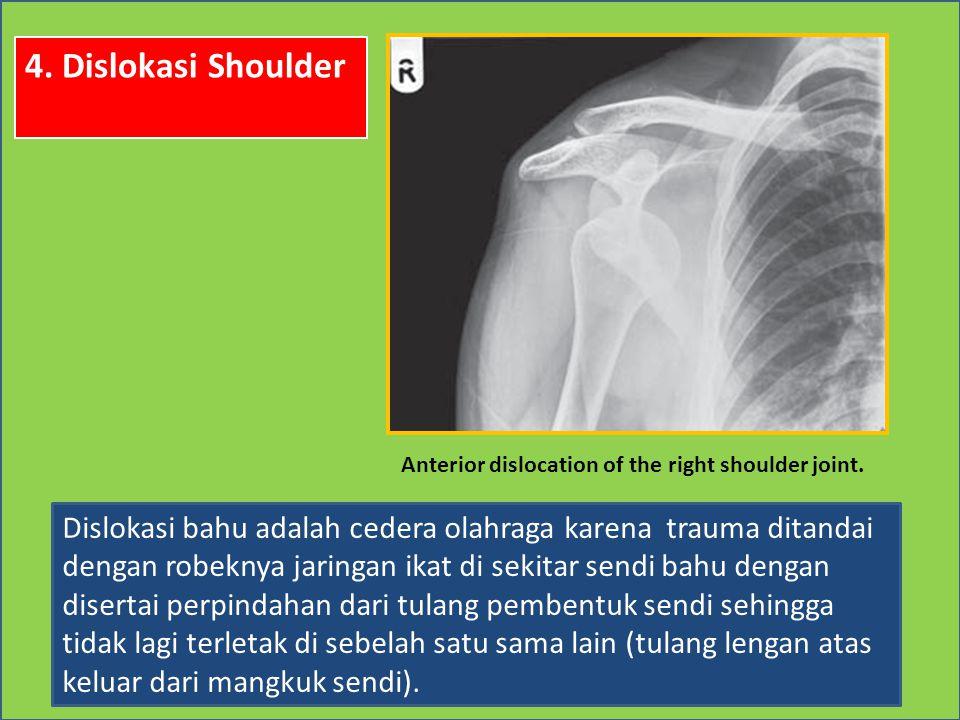 4. Dislokasi Shoulder Dislokasi bahu adalah cedera olahraga karena trauma ditandai dengan robeknya jaringan ikat di sekitar sendi bahu dengan disertai