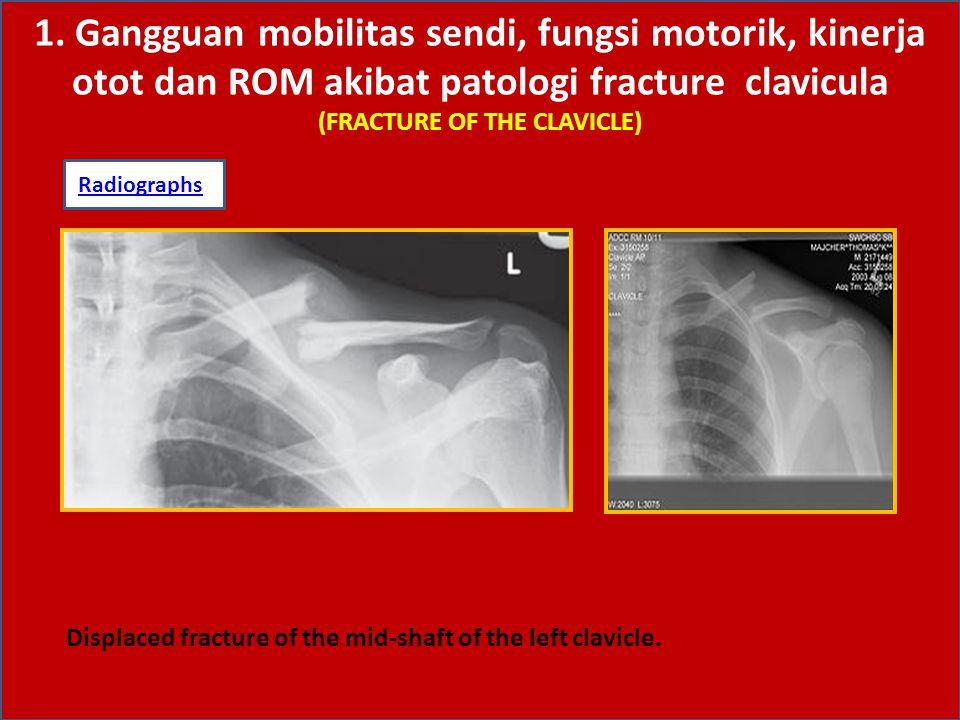 1. Gangguan mobilitas sendi, fungsi motorik, kinerja otot dan ROM akibat patologi fracture clavicula (FRACTURE OF THE CLAVICLE) RadiographsRadiographs