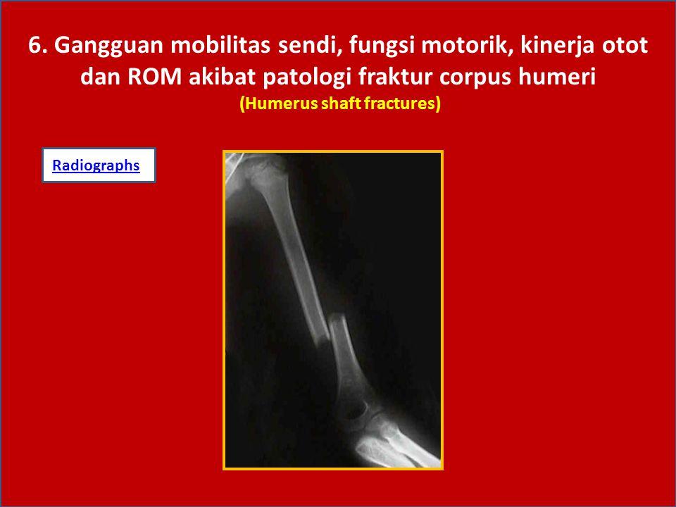 6. Gangguan mobilitas sendi, fungsi motorik, kinerja otot dan ROM akibat patologi fraktur corpus humeri (Humerus shaft fractures) RadiographsRadiograp