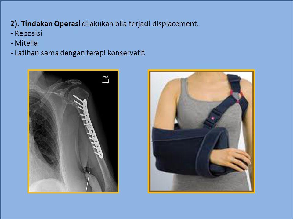 2). Tindakan Operasi dilakukan bila terjadi displacement. - Reposisi - Mitella - Latihan sama dengan terapi konservatif.