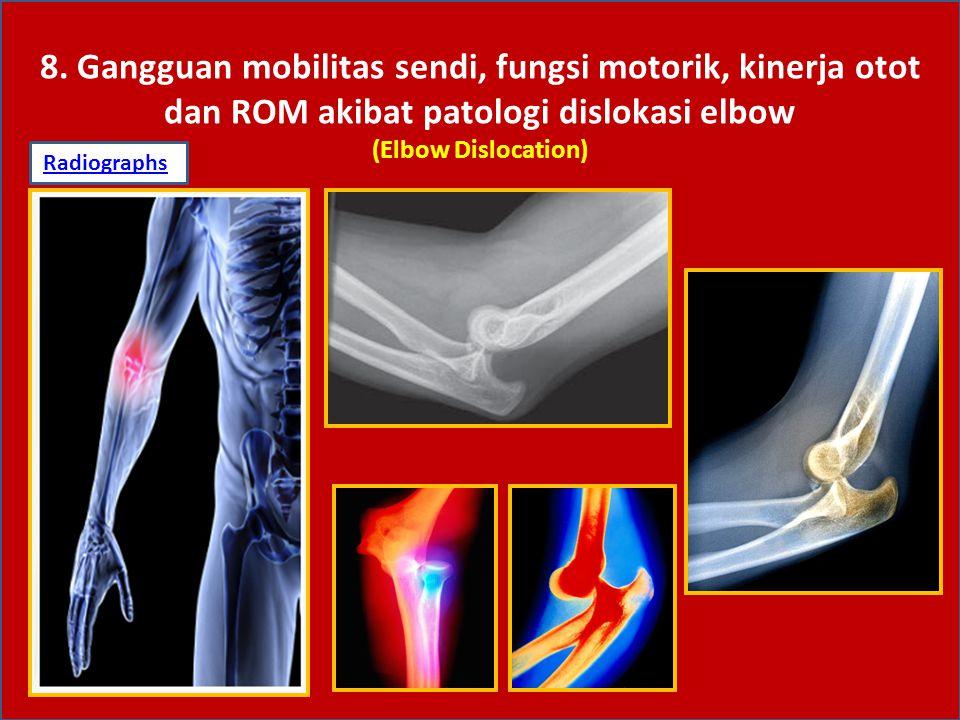 8. Gangguan mobilitas sendi, fungsi motorik, kinerja otot dan ROM akibat patologi dislokasi elbow (Elbow Dislocation) RadiographsRadiographs: