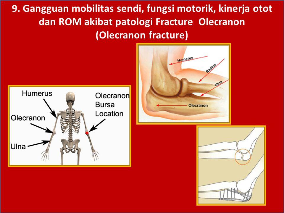 9. Gangguan mobilitas sendi, fungsi motorik, kinerja otot dan ROM akibat patologi Fracture Olecranon (Olecranon fracture)