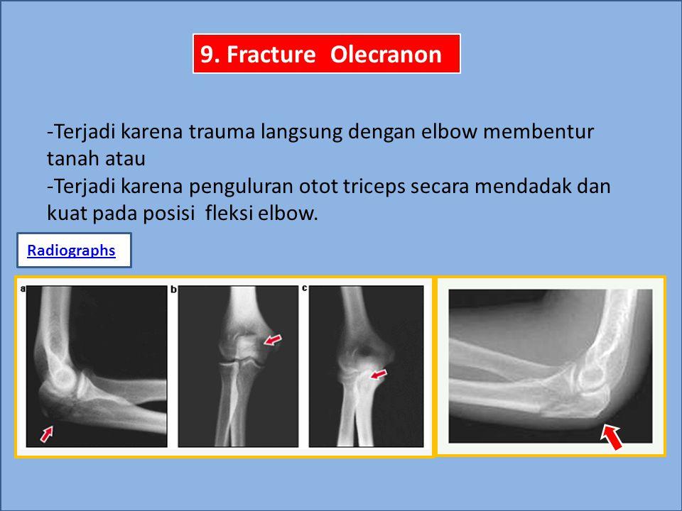 9. Fracture Olecranon -Terjadi karena trauma langsung dengan elbow membentur tanah atau -Terjadi karena penguluran otot triceps secara mendadak dan ku