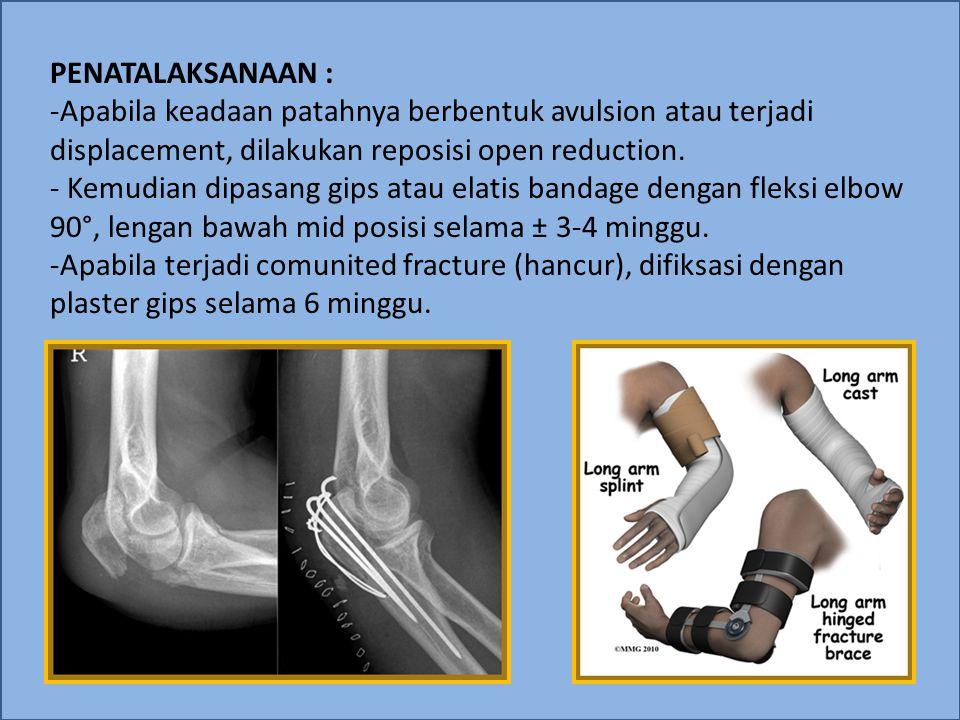 PENATALAKSANAAN : -Apabila keadaan patahnya berbentuk avulsion atau terjadi displacement, dilakukan reposisi open reduction. - Kemudian dipasang gips