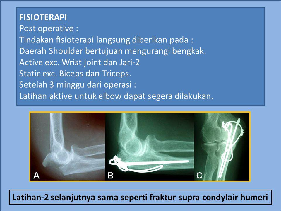 FISIOTERAPI Post operative : Tindakan fisioterapi langsung diberikan pada : Daerah Shoulder bertujuan mengurangi bengkak. Active exc. Wrist joint dan