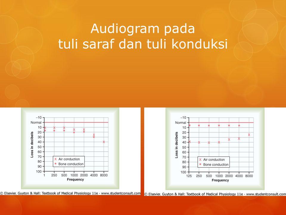 Audiogram pada tuli saraf dan tuli konduksi