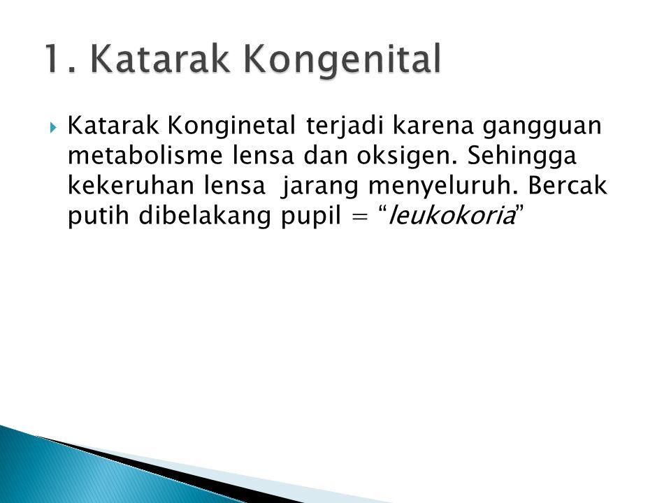  Katarak Konginetal terjadi karena gangguan metabolisme lensa dan oksigen. Sehingga kekeruhan lensa jarang menyeluruh. Bercak putih dibelakang pupil