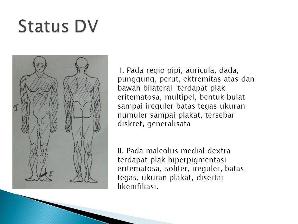 I. Pada regio pipi, auricula, dada, punggung, perut, ektremitas atas dan bawah bilateral terdapat plak eritematosa, multipel, bentuk bulat sampai ireg