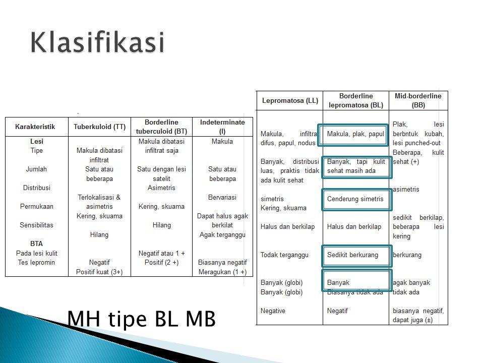 MH tipe BL MB