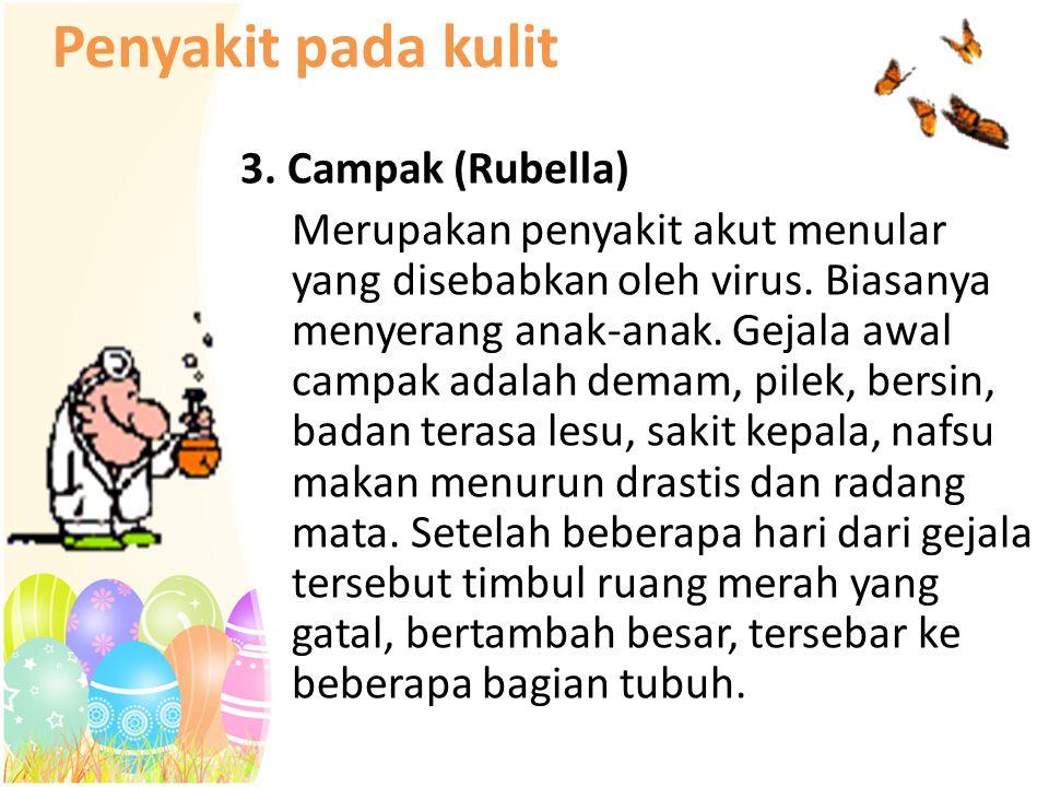 Penyakit pada kulit 3. Campak (Rubella) Merupakan penyakit akut menular yang disebabkan oleh virus. Biasanya menyerang anak-anak. Gejala awal campak a
